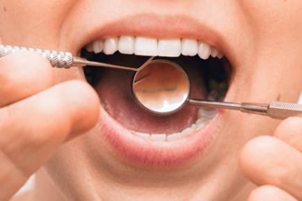 Pose de prothèse dentaire amovible ou fixe à Charleroi